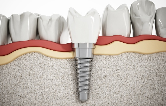 Animatd dental implant supported replacement tooth