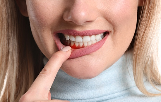 Patient with red inflamed gums before arestin antibiotic therapy